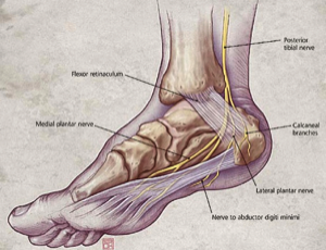 this results from compression of the tibial nerve as it passes behind the  ankle joint  it results in pain on the sole of the foot, and may progress  to